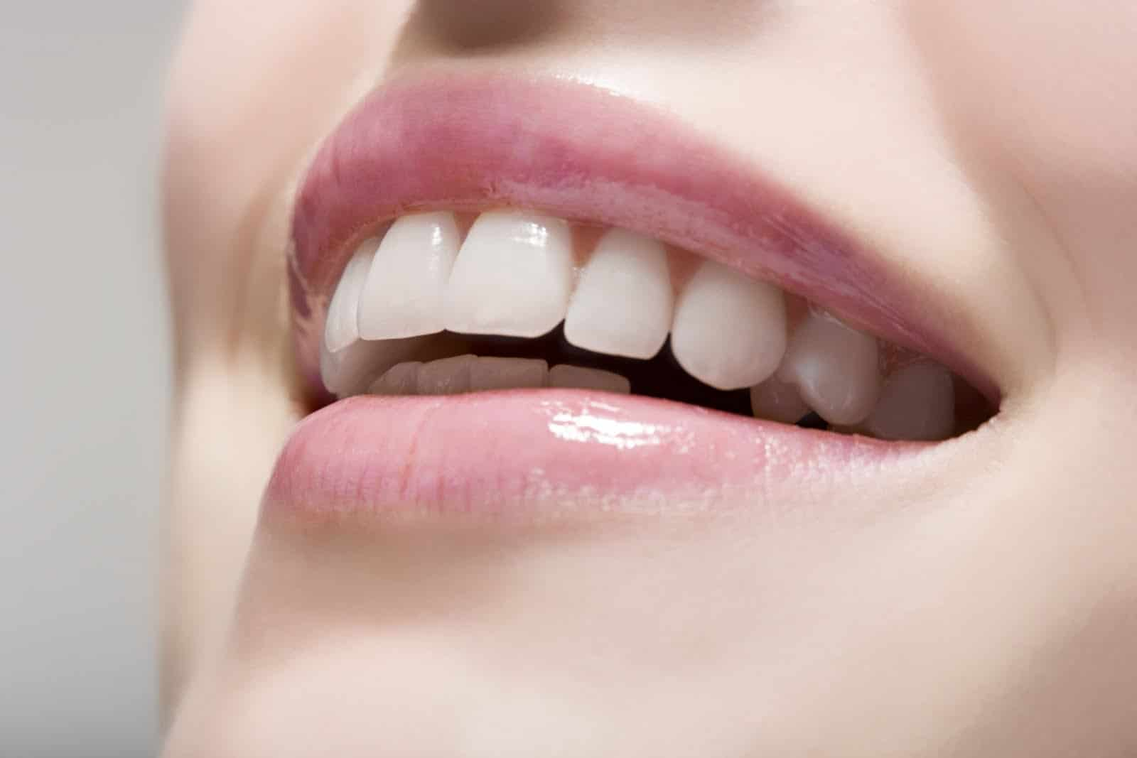 Cosmetic Dentistry palm bay fl ultimate smile design